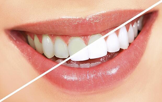 Sesión de blanqueamiento dental con LED