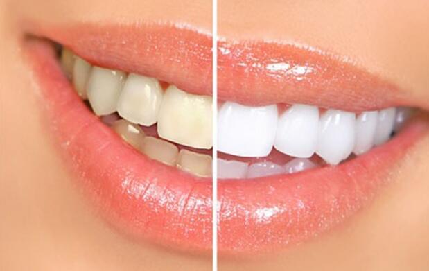 Limpieza bucal con pulido + revisión