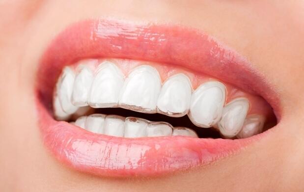Férula de descarga + revisión dental
