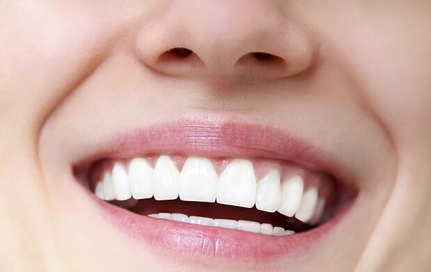 Limpieza bucal, ultrasonido y pulido